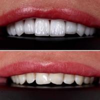 emax veneer man teeth ile ilgili görsel sonucu الفرق بين الزيركون والفينير في تركيا.