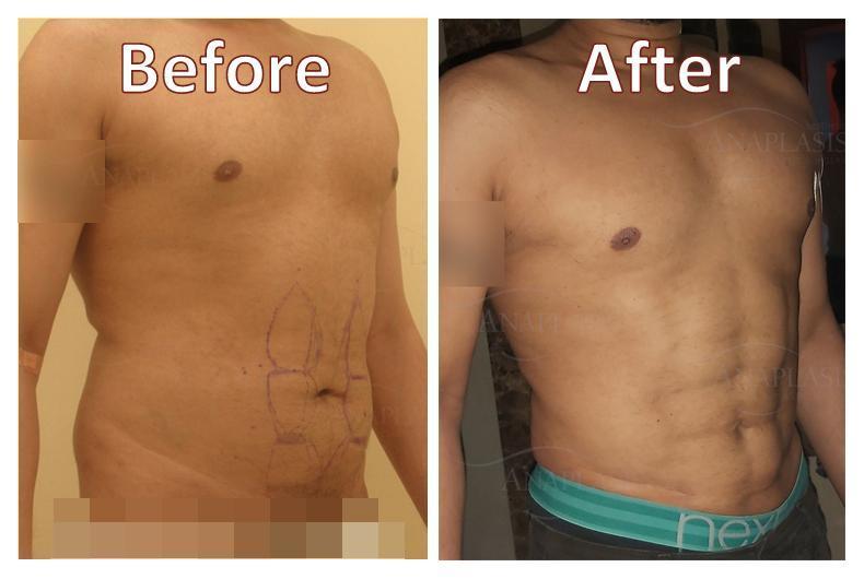 Liposuction Photos | Houston, TX | Patient 28899