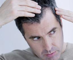 Hair transplantation - Follicular Unit Extraction (FUE) - 3,000 grafts