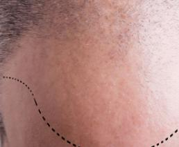Hair transplantation - Strip method - 3,000 grafts