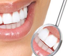 Bridge (12 tooth bridge, 4 implants)