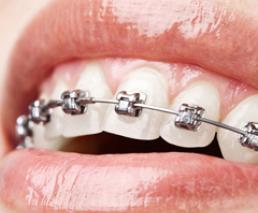 Tooth straightening (invisalign)