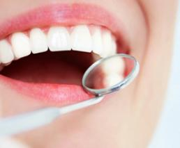 Tooth extraction - wisdom tooth