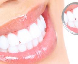 Dental implant - Astra Tech