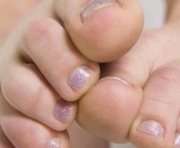 Fusion of the toe